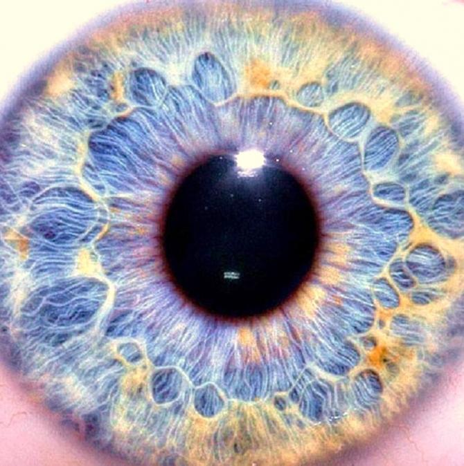 american-cryostem-cryo-eye-restore-vision